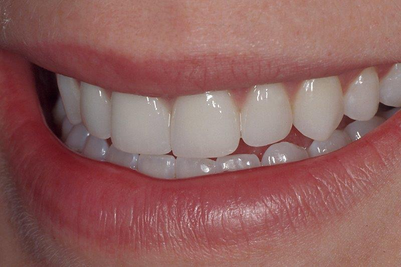 Porcelain Veneers in Alpharetta