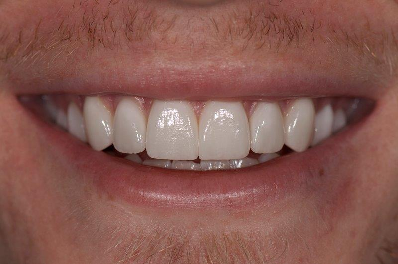 Alpharetta Dentist for Veneers