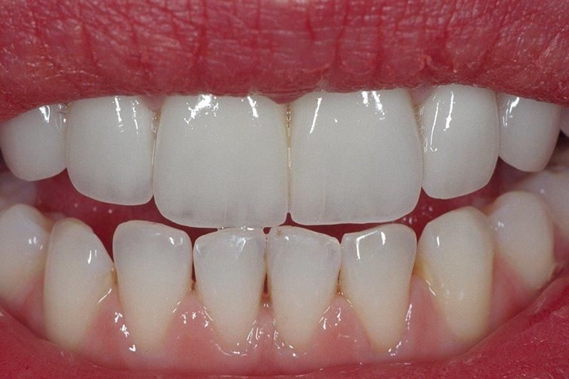 Veneers in Alpharetta, GA