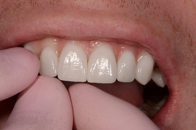 Veneers in Alpharetta